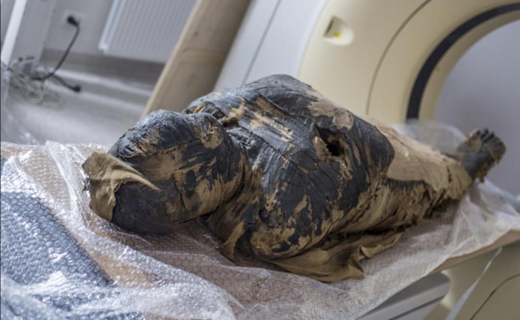 Schwangere Mumie bei Röntgenaufnahmen in Warschau.
